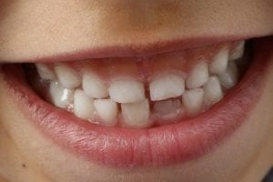 protecitng-teeth-during-the-holidays