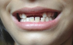 Oral Health Habits for Kids