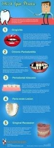 Types of Gum Disease [infographic]