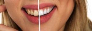 teeth yellow