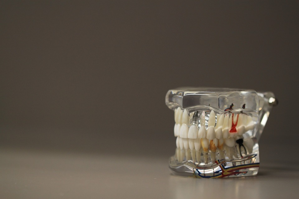 Options for Dental Implants