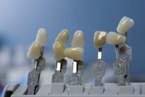 Care for Your Dental Ceramics