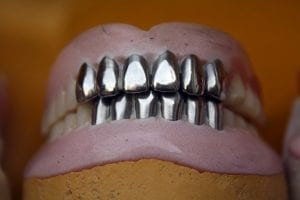 Metal or Tooth-Colored Filling