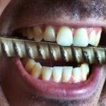 Stress Hurts Dental Health