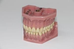 Celebrities with Dentures