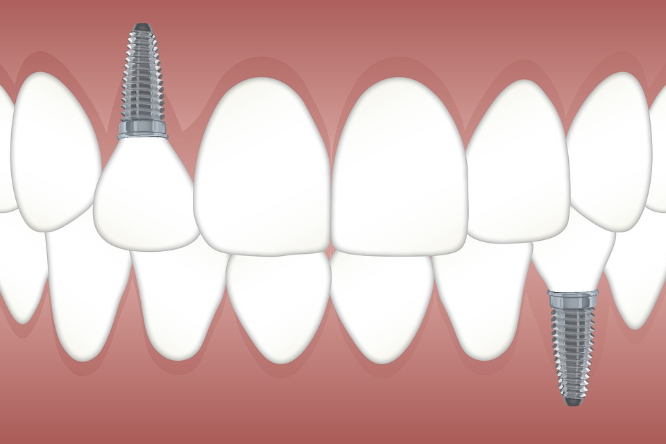 Common Dental Implant Issues