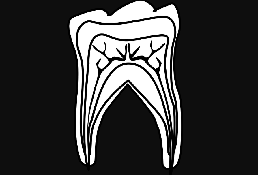 What to Know About Wisdom Tooth Extraction